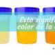 ¿Qué nos indica el color de la orina?