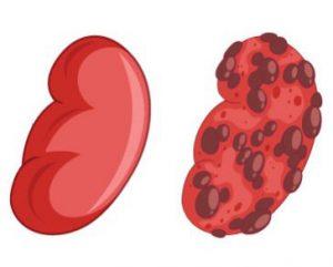 dieta para la insuficiencia renal
