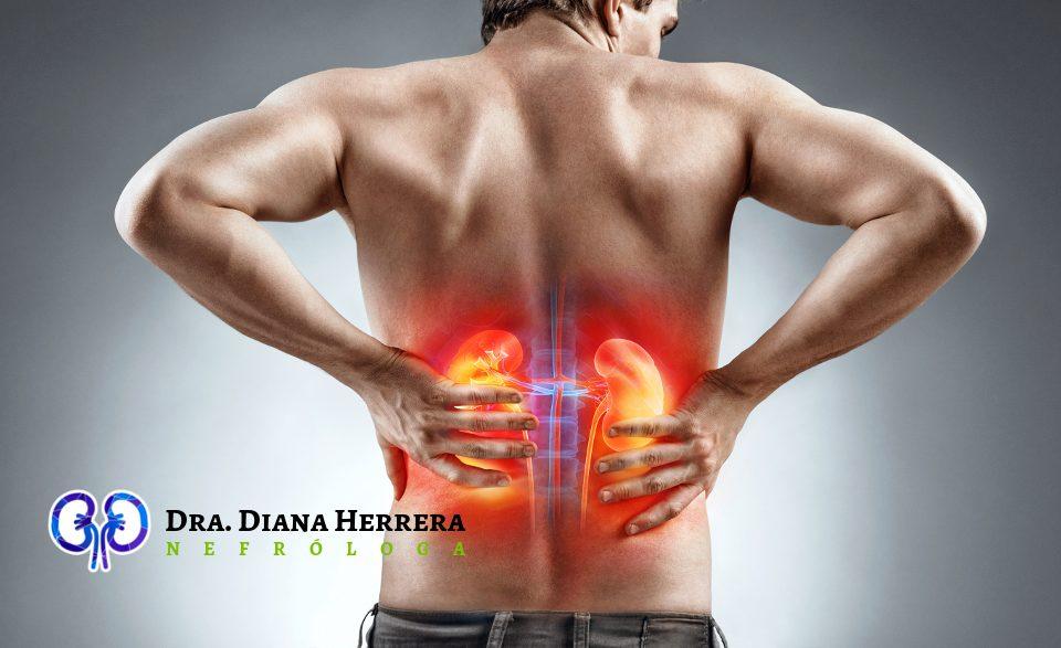 Síntomas de riñones inflamados
