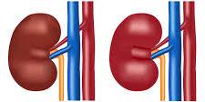 sintomas de riñones inflamados