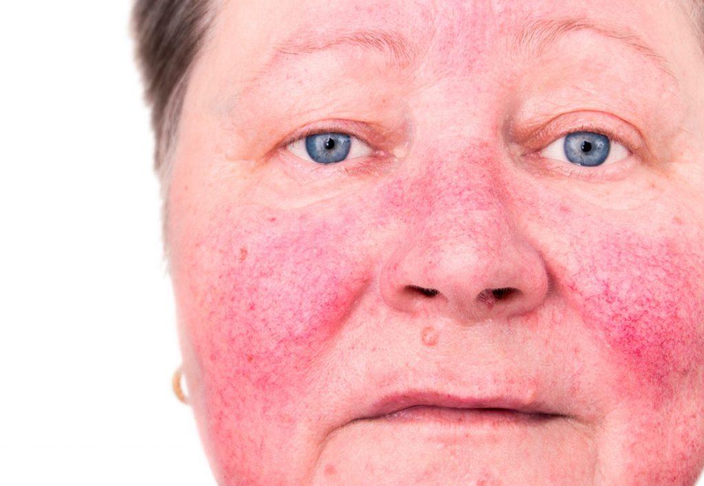 Lupus, síntomas y causas